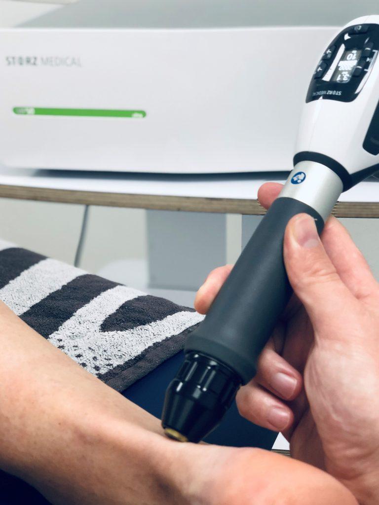 Fysiotherapie Tilburg Shockwave achillespeesklachten